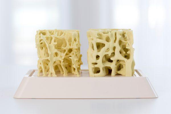 Osteoporose-Therapie